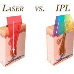 لیزر موهای زائد معمولی و ای پی ای ipl
